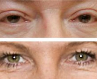 Visgodīgākās acis- Āboltiņai, visnegodīgākās-Lembergam!